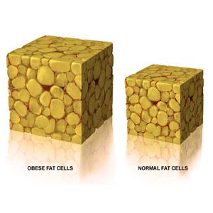 A long-term result, as the treated fat cells goes away for good.